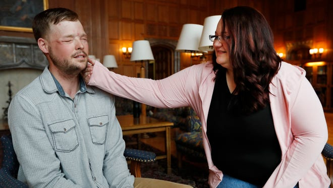 """Lilly Ross, right, feels the beard of face transplant recipient Andy Sandness during their meeting at the Mayo Clinic, Friday, Oct. 27, 2017, in Rochester, Minn. Sixteen months after surgery gave Sandness the face that once belonged to Calen """"Rudy"""" Ross, Sandness met the woman who had agreed to donate her high school sweetheart's face to him, who lived nearly a decade without one."""