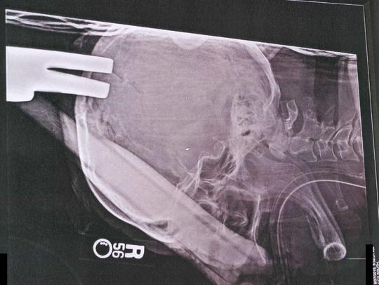An X-ray of the head of Virginia Hess, Robert Hess's