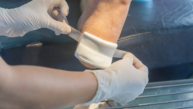 Hard to treat wounds can lead to serious and even life-threatening conditions.