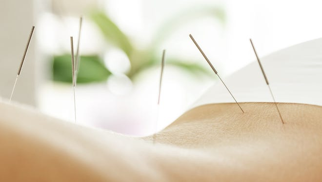Acupuncture is a form of Traditional Chinese Medicine (TCM) that has been practiced for at least the last 2,000 to 3,000 years throughout Asia.