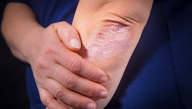 While there is no definitive cure for eczema, good skin care is the best defense, especially during the winter months.