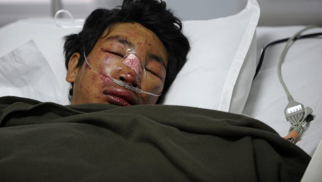 Nepalese mountaineer, Dawa Tashi Sherpa, survivor of an avalanche on Mount Everest, lies in the intensive care unit at Grandi International Hospital in Kathmandu on April 18, 2014.