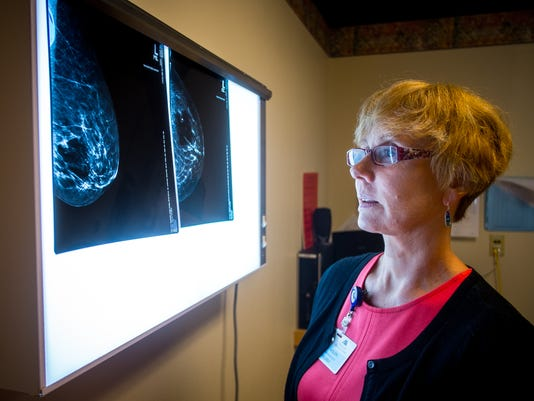 100 Free Mammograms in Las Cruces