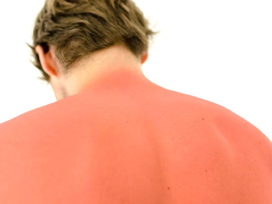 The best treatment for sunburn is to prevent it from