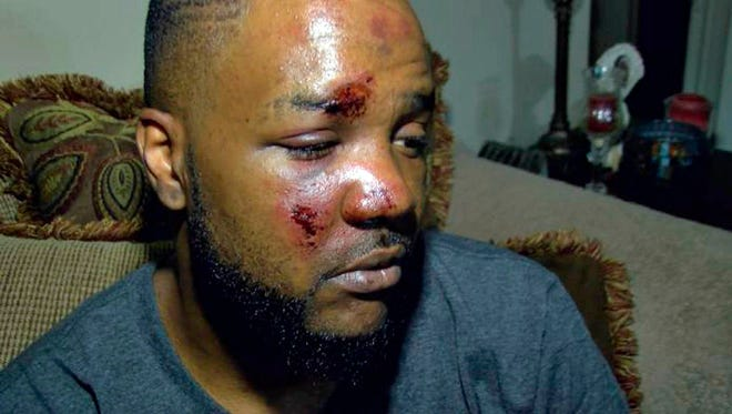 In this May 18, 2018 photograph taken from news video, James Barnett of Laurel, Miss., shows the injuries he allegedly sustained after two Laurel police officers pursued and arrested him after he turned around from a police checkpoint May 16.