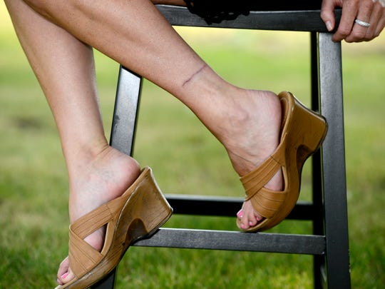 Hilary Lund shares her story of having a tatoo surgically removed from her ankle.