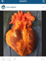 One of Nicole Angemi's Instagram photos features a human heart with dilated cardiomyopathy, a condition in which one ventricle thins and stretches out, causing arrhythmia and sudden death.