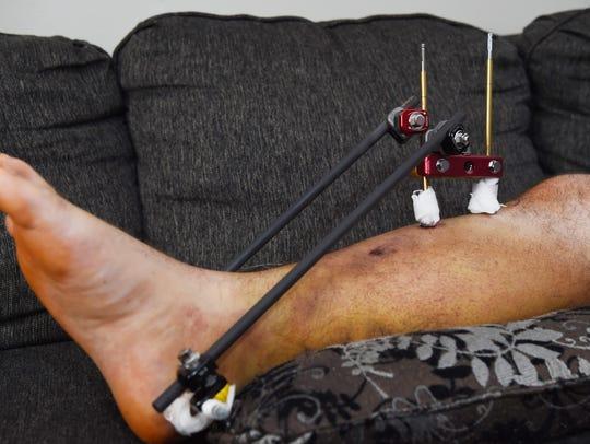 A closeup of Rob Begley's leg of following a major