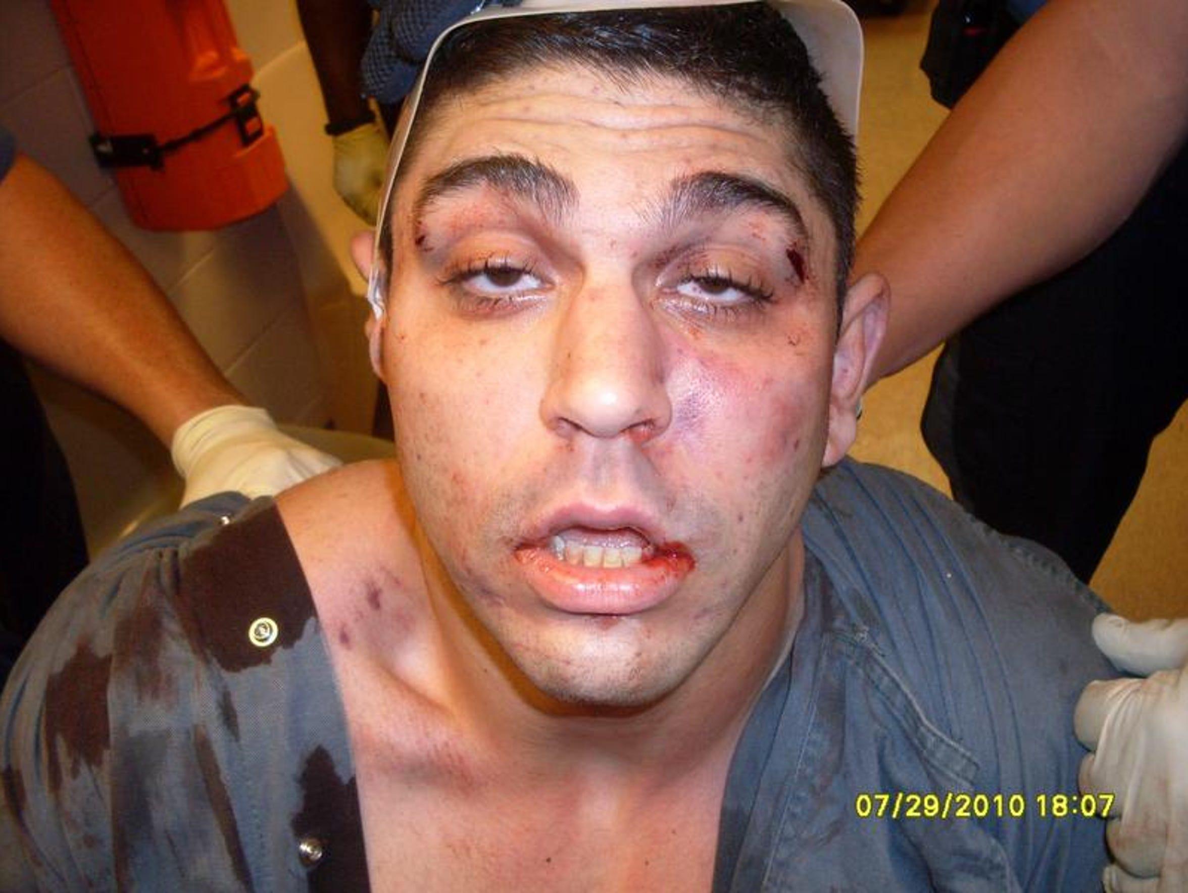 Photographs of Amit Bornstein's injuries, taken by