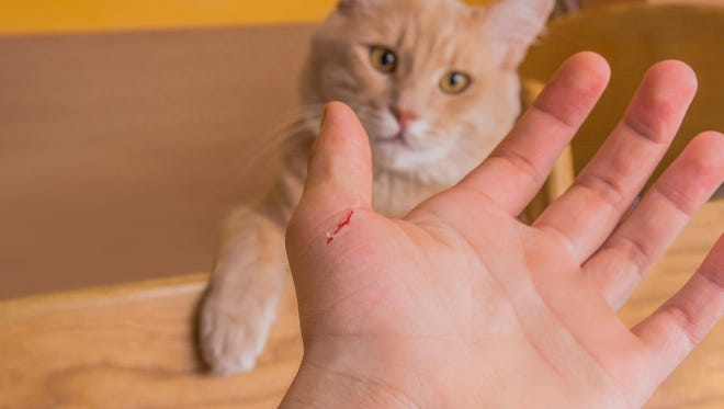 """Cat-scratch disease, which is also known as """"cat-scratch fever,"""" has more serious complications than researchers originally thought, according to a new study by the Centers for Disease Control and Prevention."""