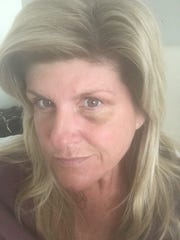 This photo provided by Cape Coral Mayor Marni Sawicki shows bruising after an altercation at a Miami Beach hotel in June.