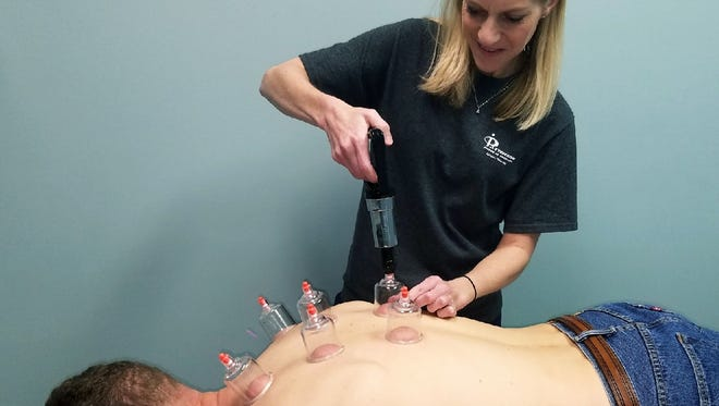 Veronica Ashlock works with a patient's back through cupping therapy.