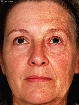 The impact of aging on human facial appearance as illustrated by the average face of 12 women aged 47 years (right facial side) and 12 women aged 70 years (left side). Aging effects facial skin such as wrinkling, uneven pigmentation, and facial structure such as lip size, nasolabial fold, with some people looking older, others younger for their age.