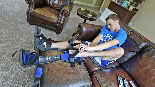 Maxwell Nugent, 17, puts on his braces in his Fortville home on July 15, 2015. After wearing the braces — designed by Indiana podiatrist Dr. Patrick DeHeer — for one hour a day, he says he feels great.