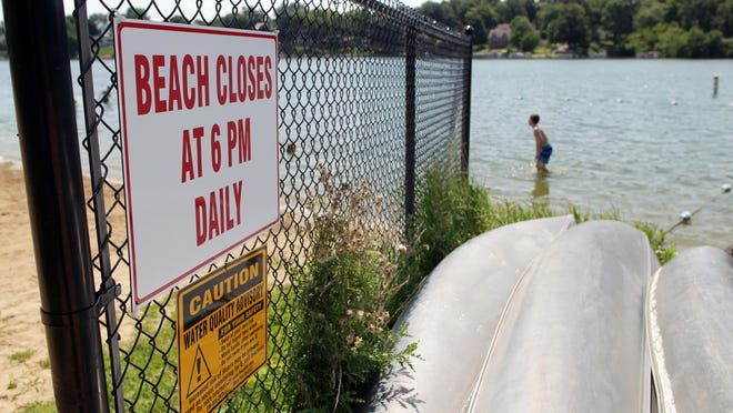 A sign warns beach-goers of a water quality advisory at Lake Macbride on Thursday, Aug. 13, 2015. David Scrivner / Iowa City Press-Citizen