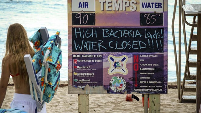 A sign near a lifeguard station indicates that the water is closed due to high bacteria levels on July 24, 2019 in Lake Worth Beach.