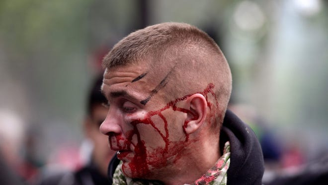 A man bleeds after clashes between police officers and demonstrators during a protest against proposed labour reforms in Paris on June 14, 2016.