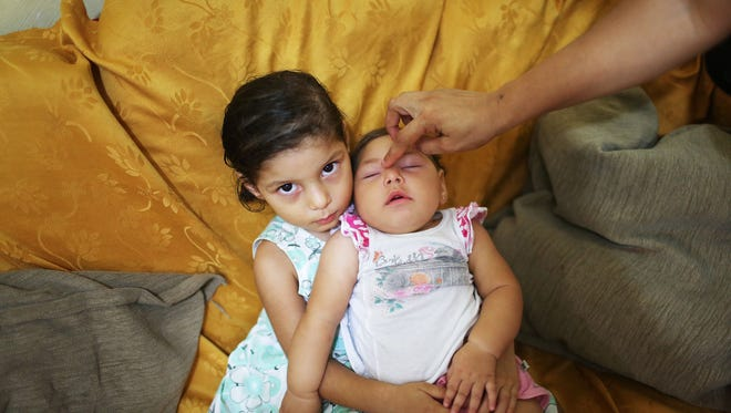 Luhandra Vitoria, seen here at 7 months, was born with microcephaly. She sits with her sister Jasminy on June 1, 2016 in Recife, Brazil.