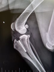 An X-ray shows the placement of a titanium cage inserted