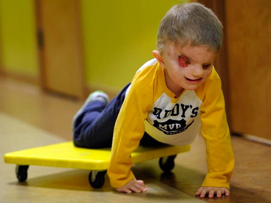 Christian Buchanan crawls with a skateboard during occupational therapy at Special Kids in Murfreesboro.