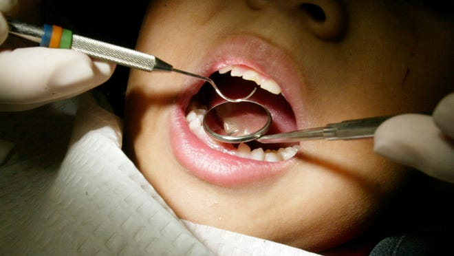 The company managing TennCare's dental benefits for Medicaid-eligible children increased the number of kids receiving care since winning the contract, federal data show.