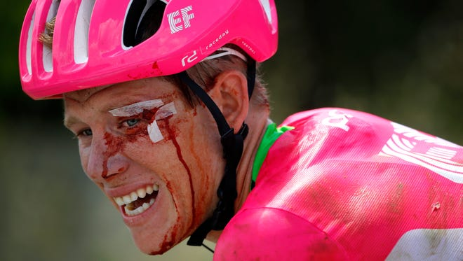 Team Education First Drapac Cannondale rider Lawson Craddock crashed during the first stage of the 105th edition of the Tour de France on July 7. He would go on to finish last in the Tour and raise more than $192,000 for his home velodrome in Houston.