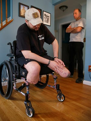 Scott Nokes is a recent double amputee who is going blind because of an infection he acquired during his Marine service in Afghanistan, is shown with his father Al in their Neptune Township home April 17, 2017.