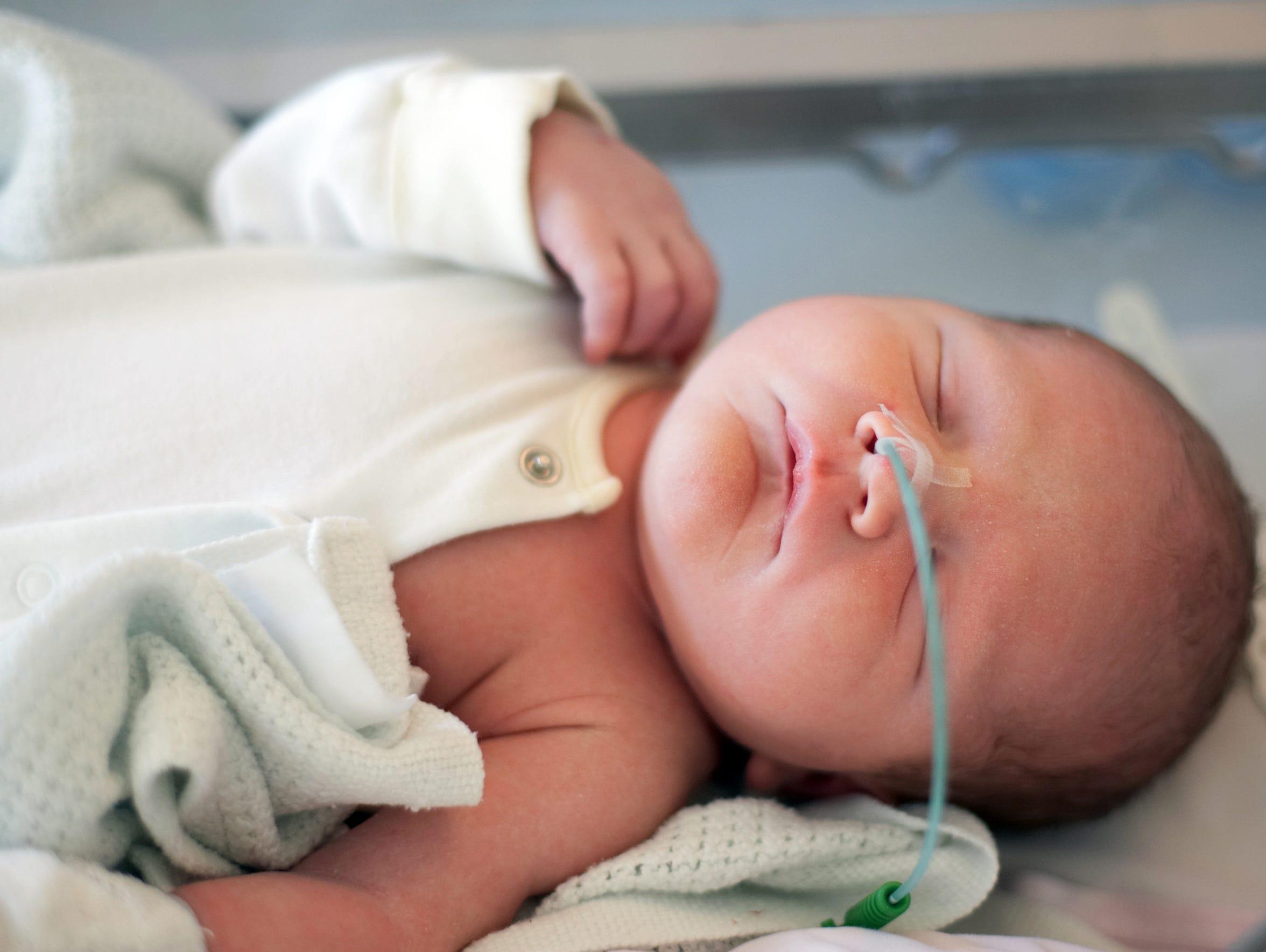 A newborn baby with a feeding tube.