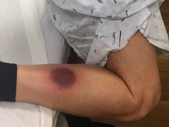Michigan man Dan Riippa has a dark wound on his right leg after possibly being bitten by a brown recluse spider/
