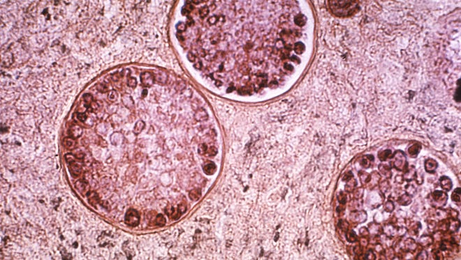 This tissue specimen shows the presence of coccidioidomycosis, also known as valley fever.