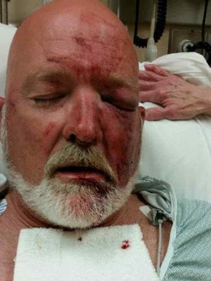 """Sgt. David """"Woody"""" Garrett suffered a broken eye socket and nose during an attack by a Morgan County Correctional Complex inmate on Tuesday, according to state Democratic lawmakers."""
