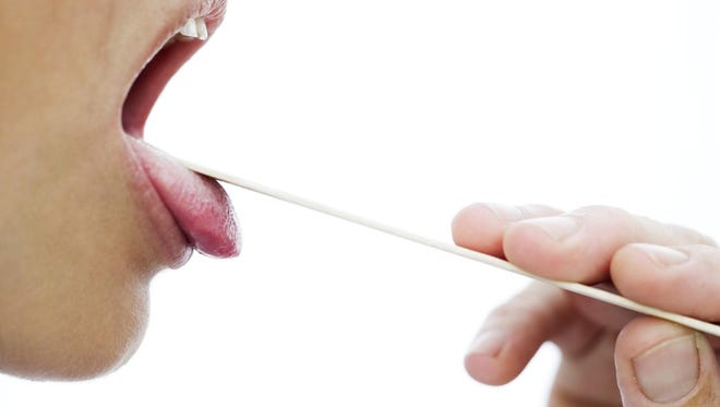 A doctor can tell how healthy a person is or diagnose a host of problems just by looking at the tongue.
