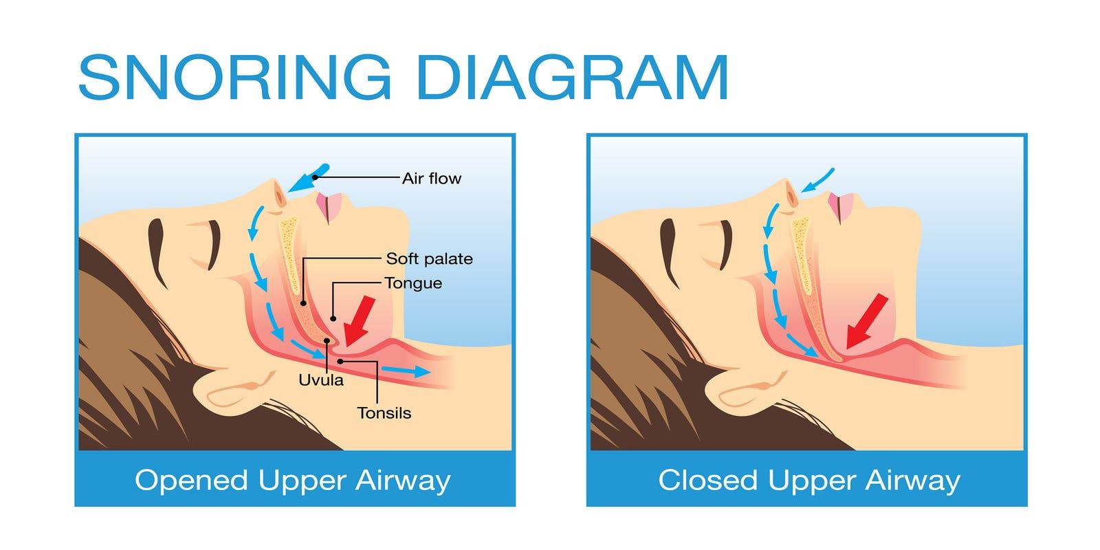 diagram of sleeping sleep apnea the serious sleep disorder  sleep apnea the serious sleep disorder