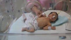 A Pakistani nurse treats a newborn baby in the neonatal