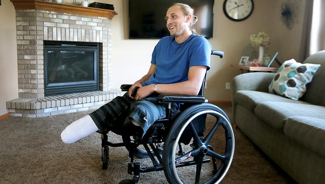 Collin VanderGalien, who lost both of his legs in an explosion at the Didion Milling Plant in Cambria, Wis. in May, is pictured at his home in Randolph, Wis., Wednesday, Aug. 9, 2017. Vander Galien has received prosthetic legs in his continuing recovery.