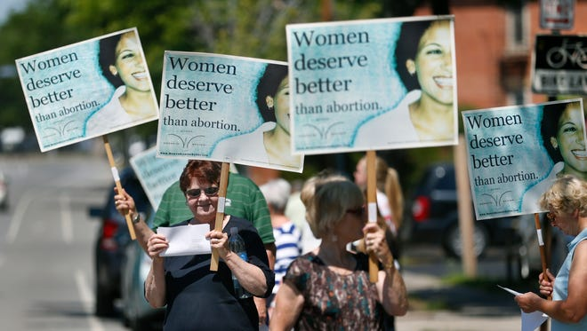 Colleen Spelley of Waterloo, Seneca County, joins others with a sign during a rally to call on New York State officials to investigate and defund Planned Parenthood.