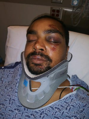 Christopher Divens in the hospital after he was hit by a police cruiser