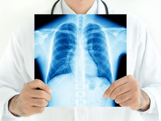 doctor-with-chest-lung-x-ray_large.jpg