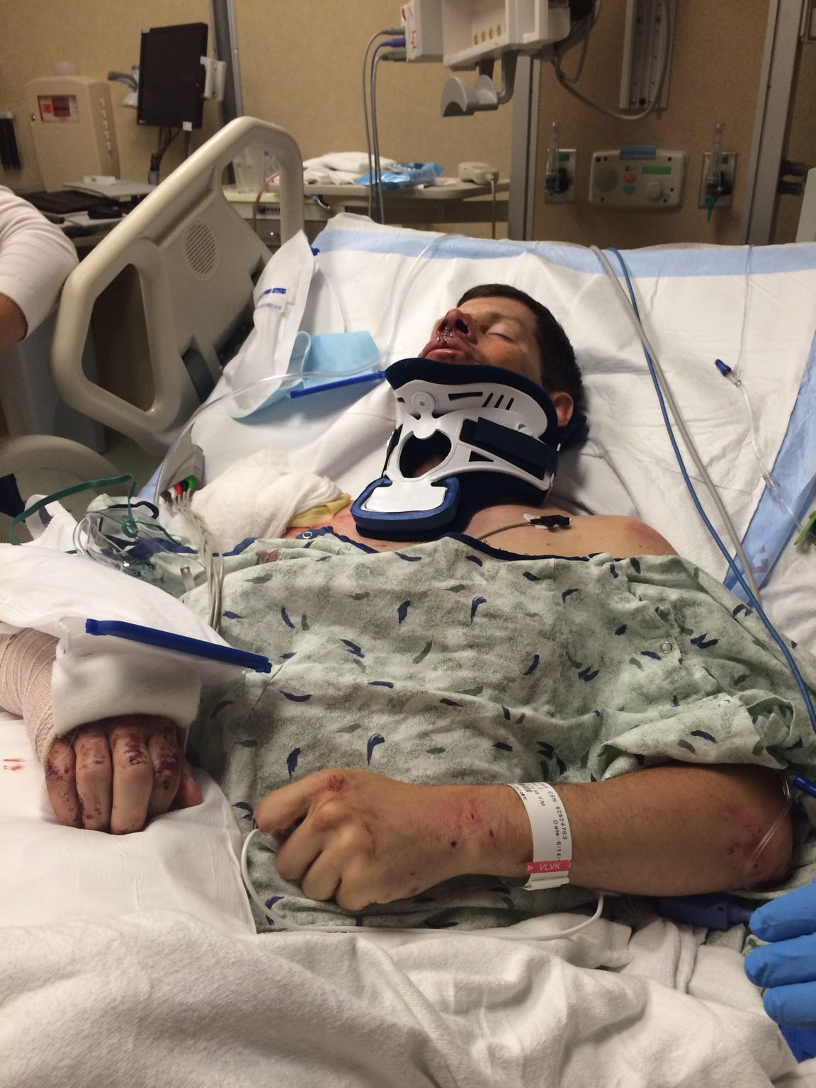 Jeff spent 11 days in a hospital bed for injuries including