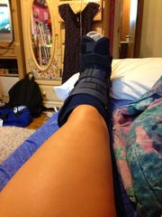 Tiffany Hollihan's foot after the biopsy in August