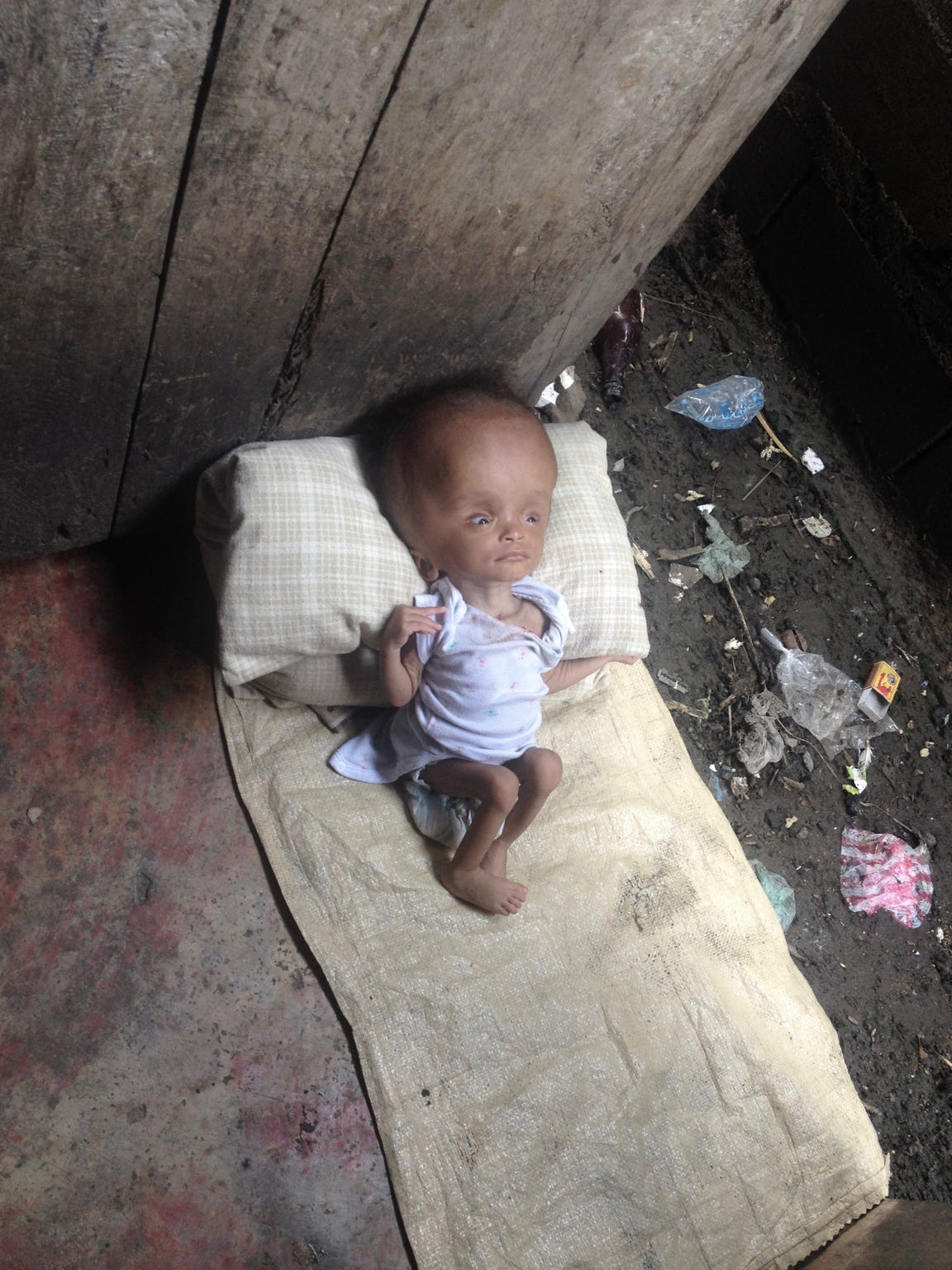 Nika was born to a Haitian prostitute. She suffers from hydrocephalus and hydranencephaly.