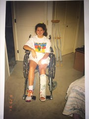 Stephanie (Kesterson) Tomlinson during her recovery from injuries sustained in the July 31, 1991 Girl Scouts bus crash on Tramway Road in Palm Springs.