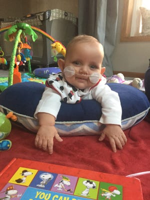 Henry Rogers, 10 months old, of Loveland needs a kidney transplant after developing Kidney Failure  in the womb. His family is raising money through Children's Organ Transplant Association.