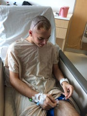 The aftermath of skull reconstruction surgery can be seen in this photo as Lucas shows off his scar.