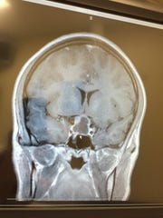 An x-ray of Claire Marsh's skull shows a grey mass