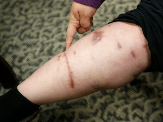 Michelle Blair shows her scars from the dog bite.