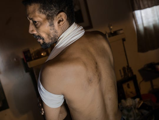 Edward Gaines shows the unexplained rash on his back