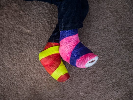 Alaina Crone, 3, wanted her casts to be colorful so