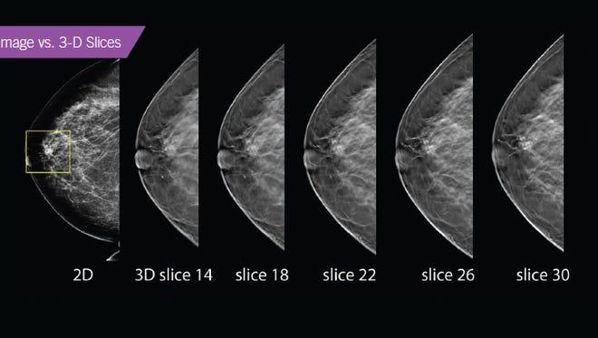 3D Breast Imaging