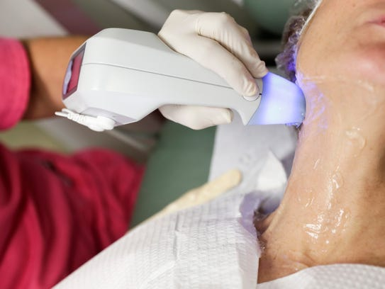 A neck treatment with the BTL Exilis Ultra machine.